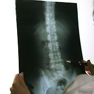 Osteoporose: Neues Behandlungsprinzip im Kommen