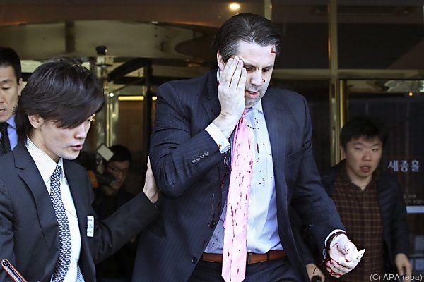 US-Botschafter Lippert wurde im Gesicht verletzt