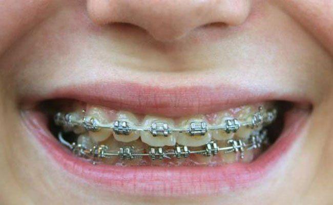 Dem Start des Projekts Gratis-Zahnspange steht nichts mehr im Wege.