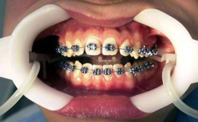 552 Gratis-Zahnspangen wurden in Wien bis Oktober in Anspruch genommen.