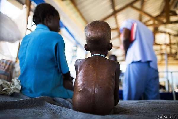 Bürgerkrieg und Hunger herrschen im Südsudan