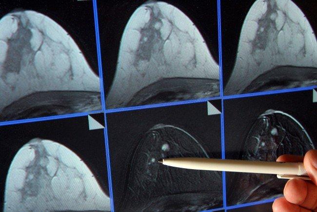 Das MR-Bild zeigt ein kleines Krebsgeschwür.