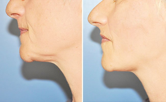Bild links: Vor der Behandlung. Rechts: Danach.