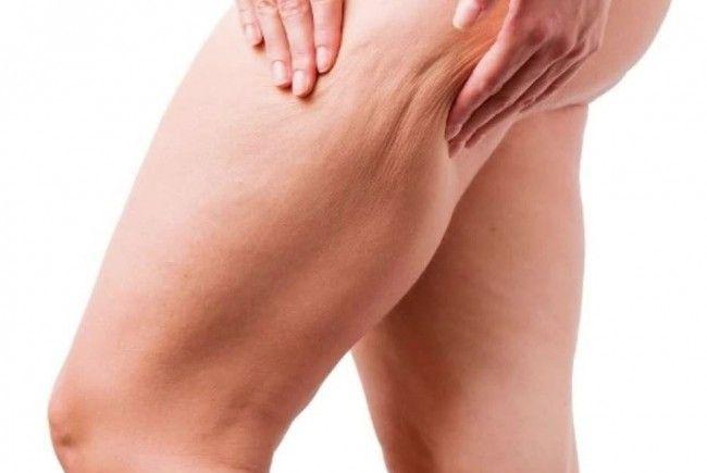 Probleme mit Cellulite?