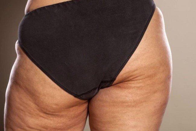 Cellulite: Viele Frauen kennen das Problem.
