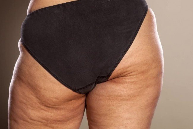 Cellulite: Diese Dinge verhindern, dass du sie loswirst