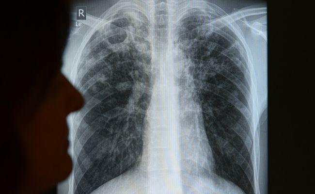 Ein Schüler des Gymnasiums in Purkersdorf ist an Tuberkulose erkrankt.