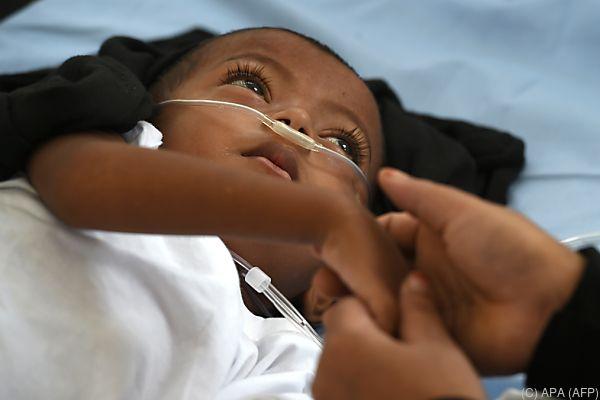 Die Krankheit fordert jährlich hunderttausende Todesopfer unter 18