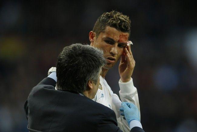 Cristiano Ronaldo erzielte schmerzhaftes Tor.