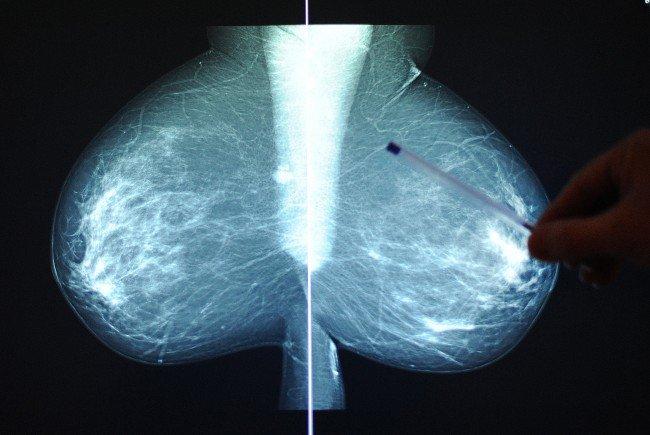 überleben knochenmetastasen brustkrebs